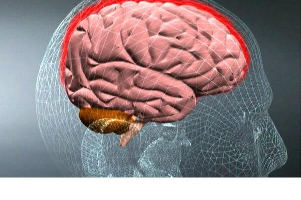 meningite-